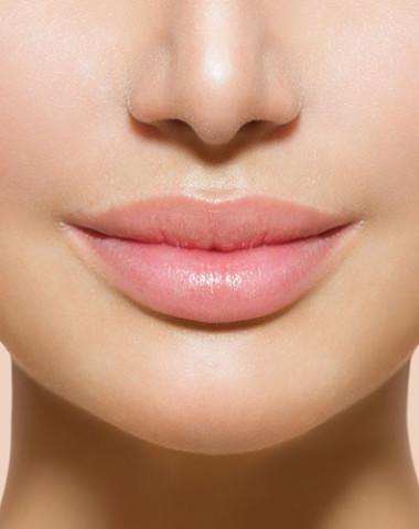 Lips Fillers & Augmentation In Edmonton