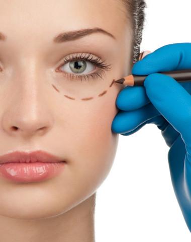 eyelid surgery Edmonton